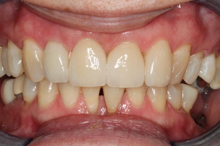 After Vero Dental treatment